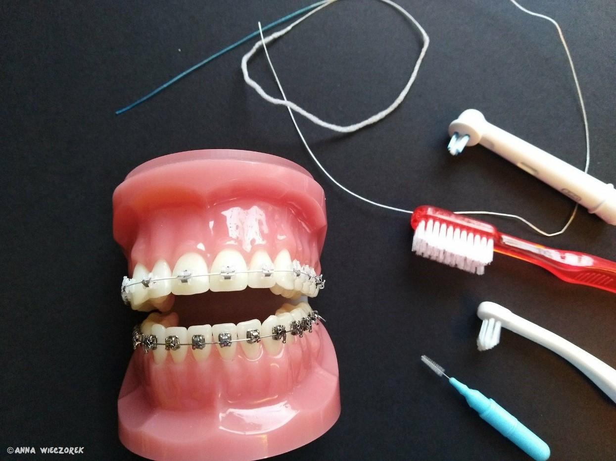 Ortodoncja Dabala Katowice Śląsk - Higienistka